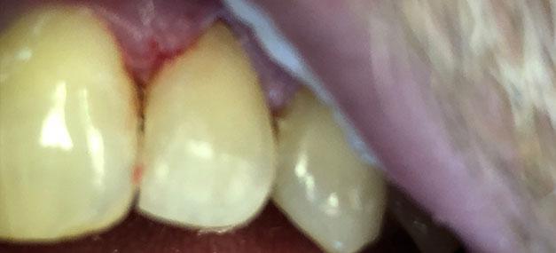 broken tooth after
