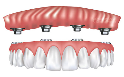 permanent dentures secured with dental implants