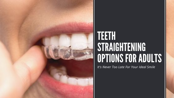 Teeth Straightening Options for Adults